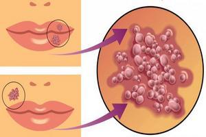вирус герпеса локализуется не только на губах