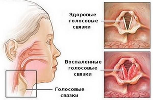 стеноз голосовых связок