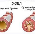Полная классификация хронической обструктивной болезни легких (ХОБЛ)