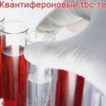 Что такое квантифероновый тест на туберкулез, и где его сделать?