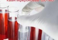 тест на наличие туберкулёза
