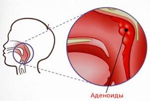 схема аденоидита у детей
