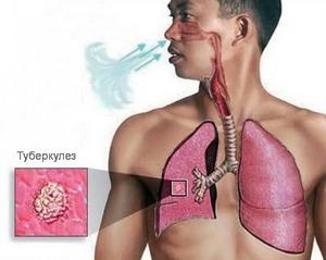 воздушно-капельный путь передачи заболевания
