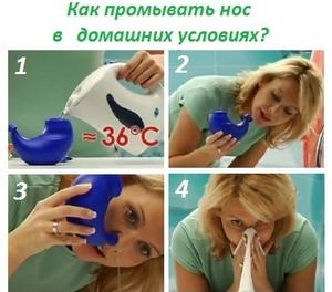 Как промыть нос от насморка в домашних условиях ребенку