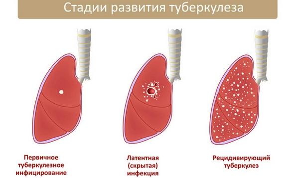 основные стадии туберкулёза