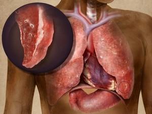 вид лёгкого поражённого туберкулёзом