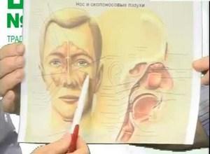 схема воспалителных процессов в носоглотке