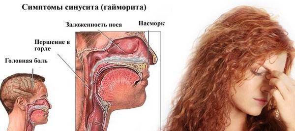 симптомы бактериального синусита