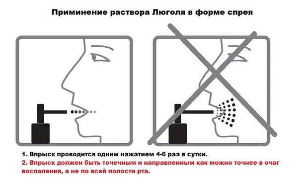 инструкция по распылению люголя в горло