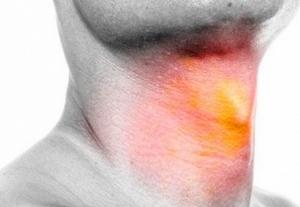 спреи применяют для лечения воспаления горла