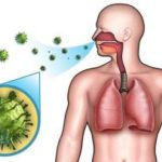 Можно ли заразиться пневмонией легких