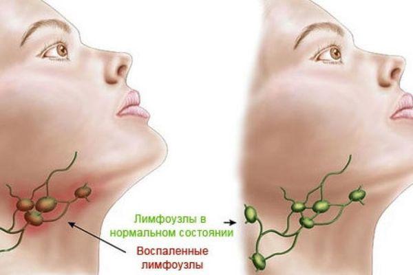 Болят лимфоузлы на шее справа или слева причины симптомы лечение
