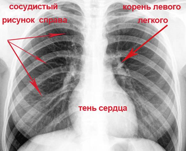 легкие на рентгене