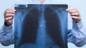 снимок ренгена