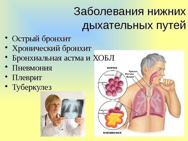 заболевания