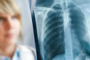 снимок при туберкулезе