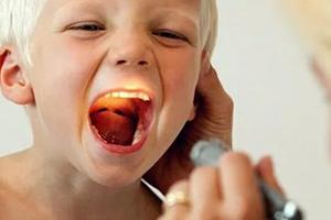 красное горло у ребенка