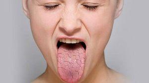 сухость слизистой рта