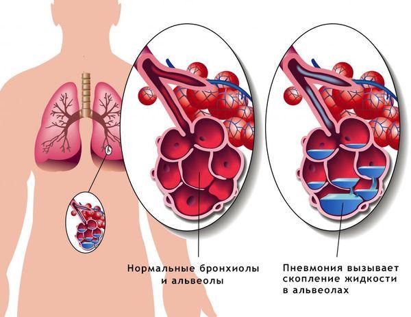патогенез пневмонии