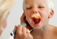 Что такое аденоиды и какова роль носоглоточной миндалины у детей?