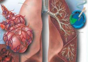 действие сигаретного дыма на лёгкое