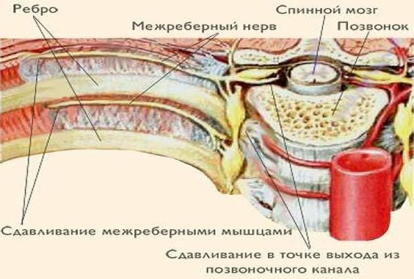 Под правой грудью болит вздохнуть больно thumbnail