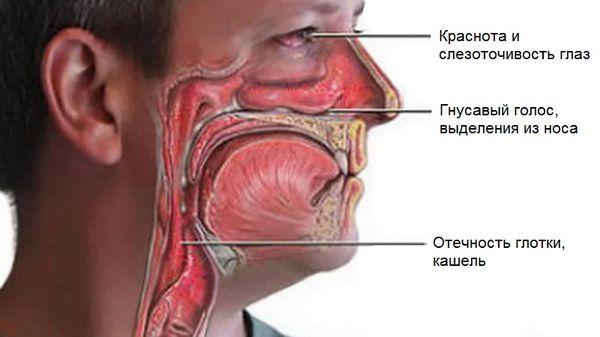Горло насморк кашель без температуры чем лечить thumbnail